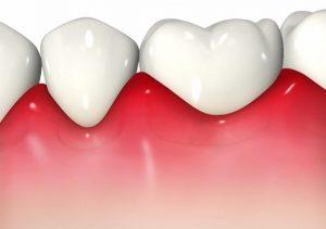 痛い 歯茎 腫れ て 歯茎が腫れて痛い!その原因と自宅で出来る応急処置はコレ!