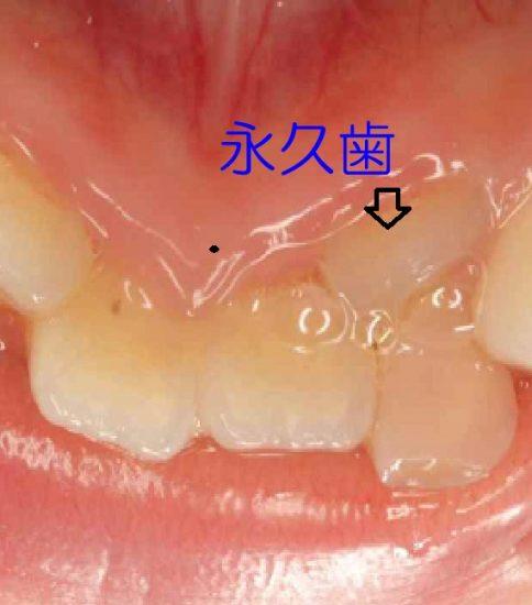 乳歯の後ろから永久歯が生えてきた