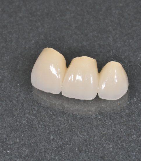 保険治療と自費治療の被せ物の違い(前歯)