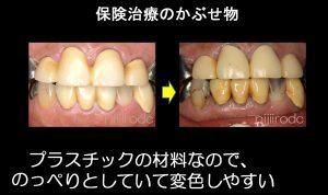 保険治療の前歯の色の変化