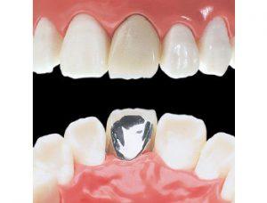 被せ 物 歯医者