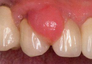 歯肉の腫脹