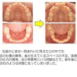 乳歯から永久歯の生え変わり比較